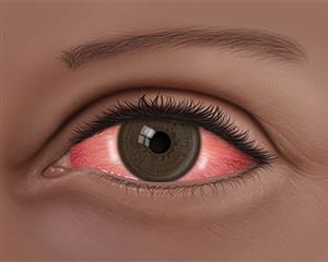 Conjuntivitis infantil en el ojo