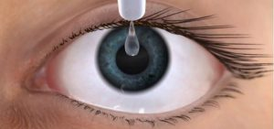 Ojo seco, aplicación de gotas como tratamiento para la sequedad ocular