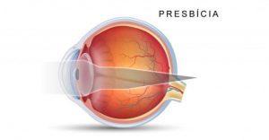 Error refractivo del cristalino en presbicia o vista cansada